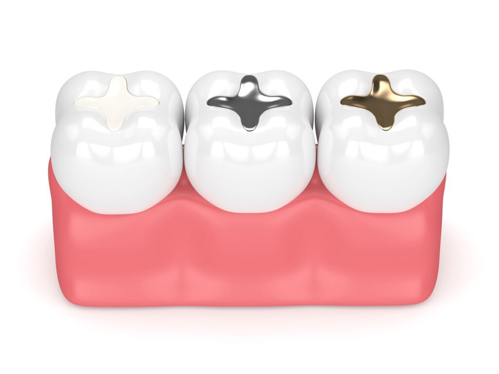 Dental Fillings Cost Treatment and Types Perth