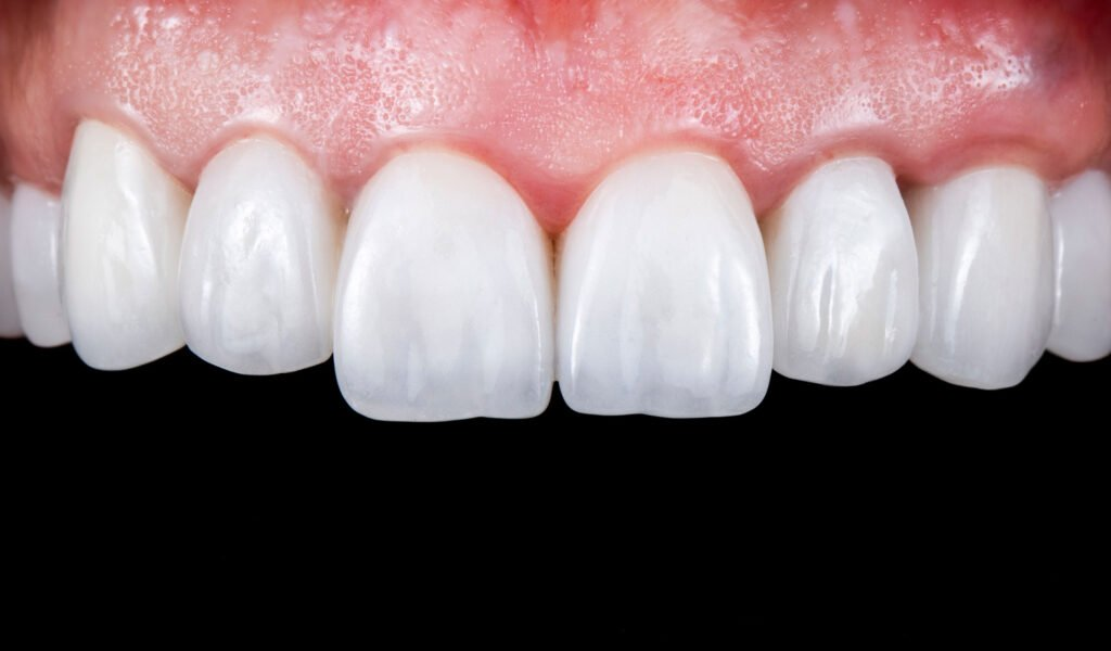 Porcelain Veneers Cost Treatment and Procedure by Excel Dental Care Perth
