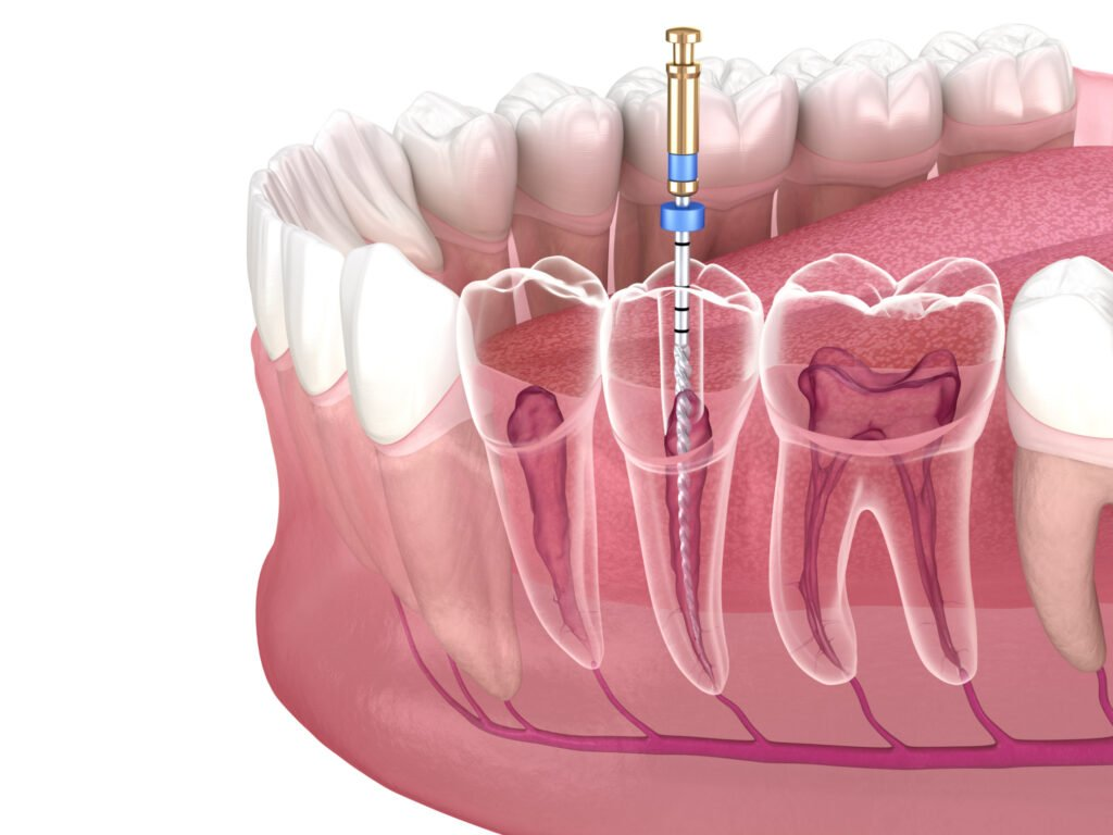 Root Canal Treatment and Cost by Excel Dental Care Perth